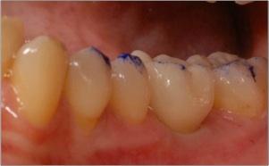 La couronne est vissée ou collée sur le pilier. L'occlusion dentaire est adaptée à la nouvelle couronne.
