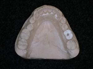 1 guide avec dent opaque percée