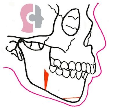 rétro-mandibulie