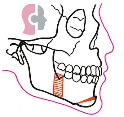 Avancée mandibulaire avec génioplastie