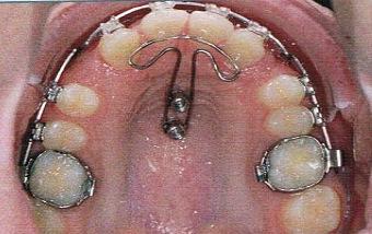 Mésialisation bilatérale des dents postérieures du maxillaire On obtient une fermeture de l'espace en ajoutant un ancrage indirect soutenu par un implant.