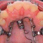 Mésialisation bilatérale des dents postérieures du maxillaire par ancrage direct. Un Mesialjet est utilisé pour la mésialisation des dents maxillaires postérieures. Le déplacement mésial des molaires est possible jusqu'aux positions définies et non au-delà, grâce à l'aide de deux butées. Le ressort soudé sur la suprastructure postérieure sert de bras de levier pour la chaine de force élastique et permet l'intrusion et le mouvement médian de la deuxième molaire gauche du maxillaire.