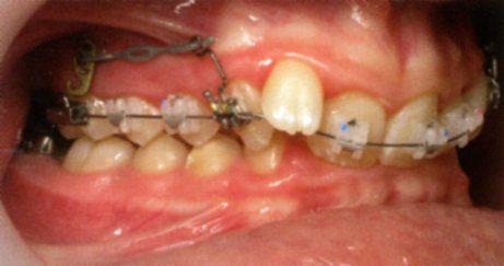 Recul par traction sur crochet dentaire Crochet fixe relié à la plaque