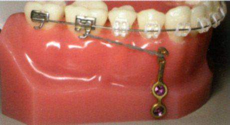 Mesialisation unitaire ou globale mandibulaire Crochet fixe relié à la plaque